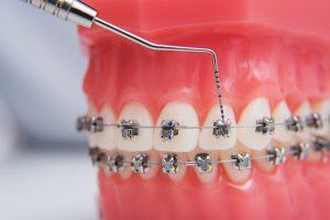 metal braces