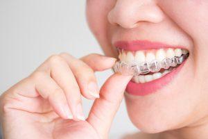 Invisalign in orthodontics